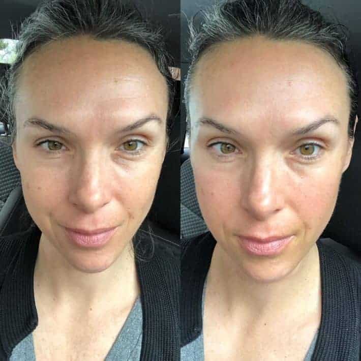 Before and after facial sculpting massage lift