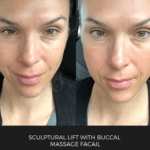 sculptural lift with buccal massage facail