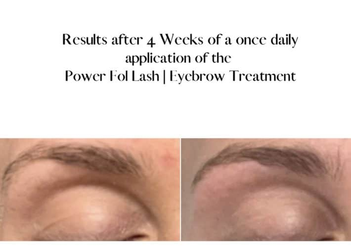before and after using lash and brow serum 2