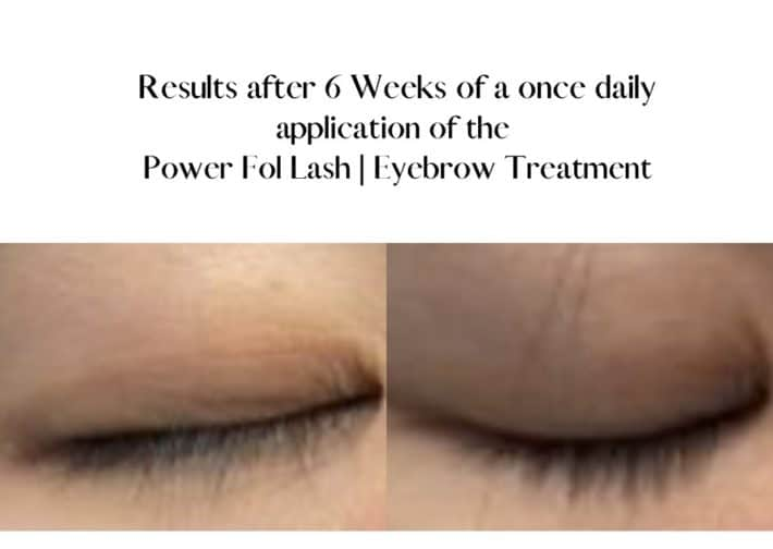 before and after using lash and brow serum 4